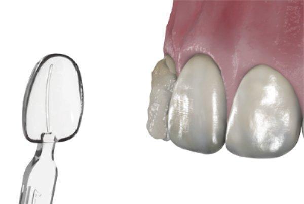 ربات اچینگ ایمپلنت دندان ساخته شد