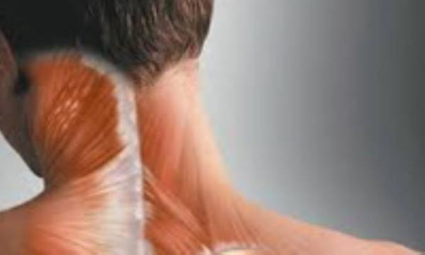 کشیدگی در عضلات گردن